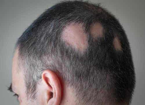 如何使用自然療法治療脫髮
