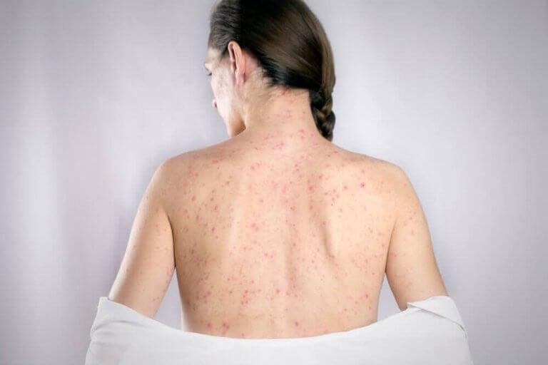 治療背部疱疹的5種最佳療方