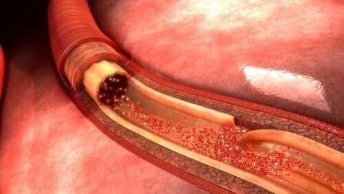 主動脈剝離簡介及病因