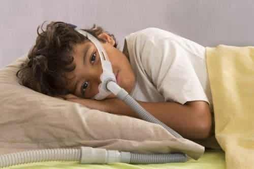 兒童的阻塞性睡眠呼吸中止症