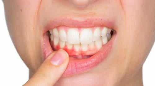 牙齦膿腫及其治療