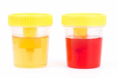 血尿:症狀和病因