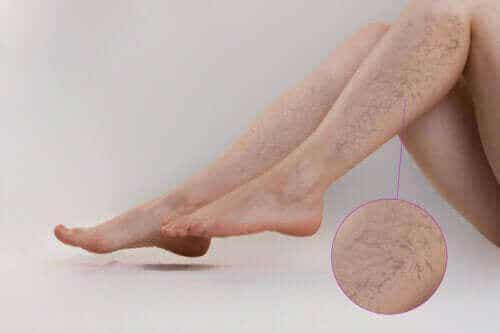 預防靜脈曲張的運動類型