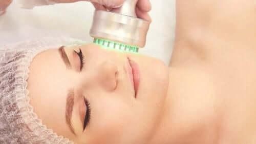 電波肌膚治療