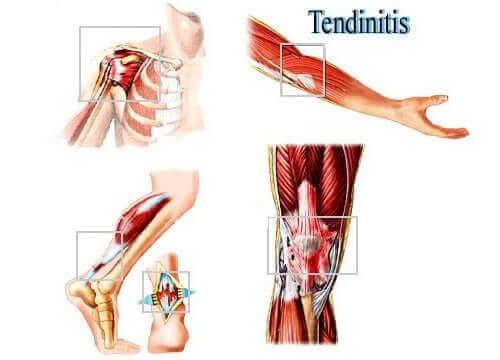 代表性肌腱炎