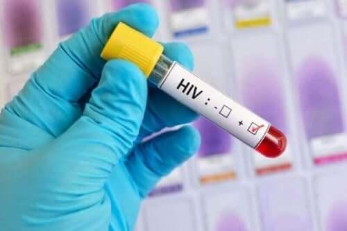 HIV血液檢查