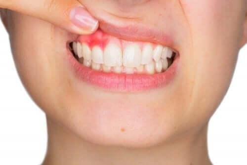 女人牙齦腫脹