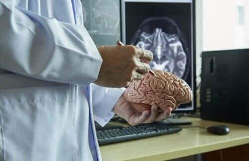 醫生拿著塑膠大腦