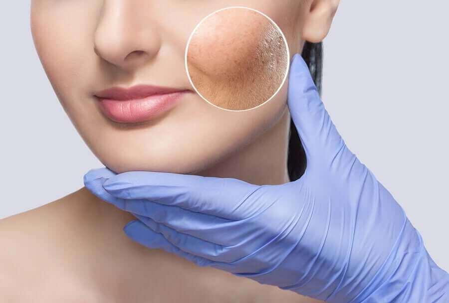 如何治療反應性肌膚
