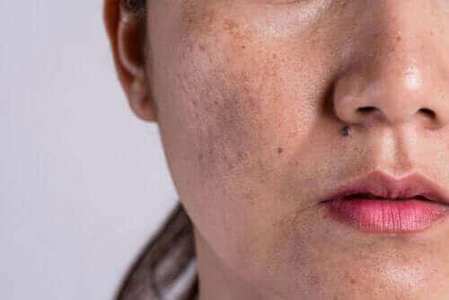 色素增多症的原因