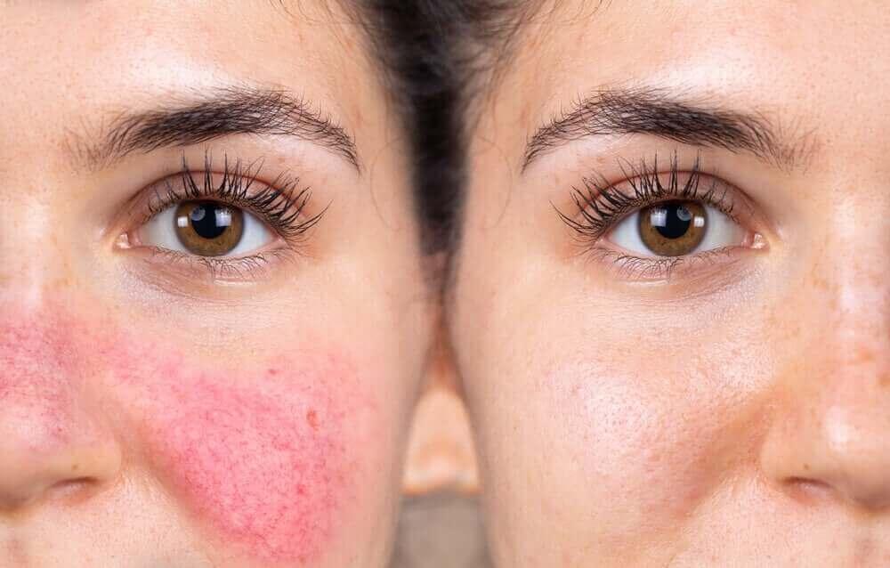 女性反應性肌膚