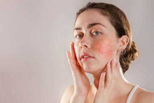 反應性肌膚:症狀、原因和治療