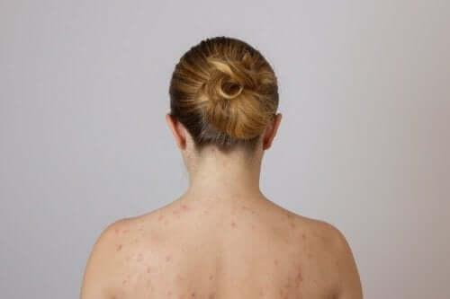 女人背部脂肪硬塊