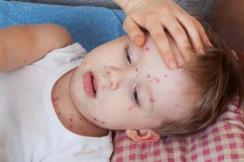 如何治療兒童蕁麻疹