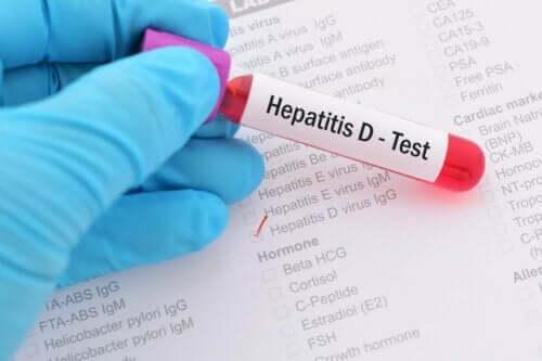 D型肝炎測試