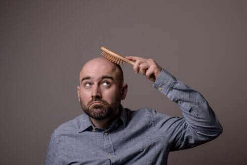不同類型掉髮:你需要知道的一切資訊