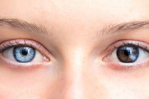 眼睛顏色的變化必須特別注意
