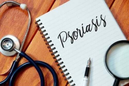 五種預防乾癬的方法