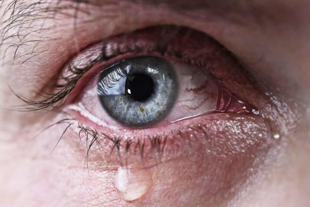 眼睛過多淚水